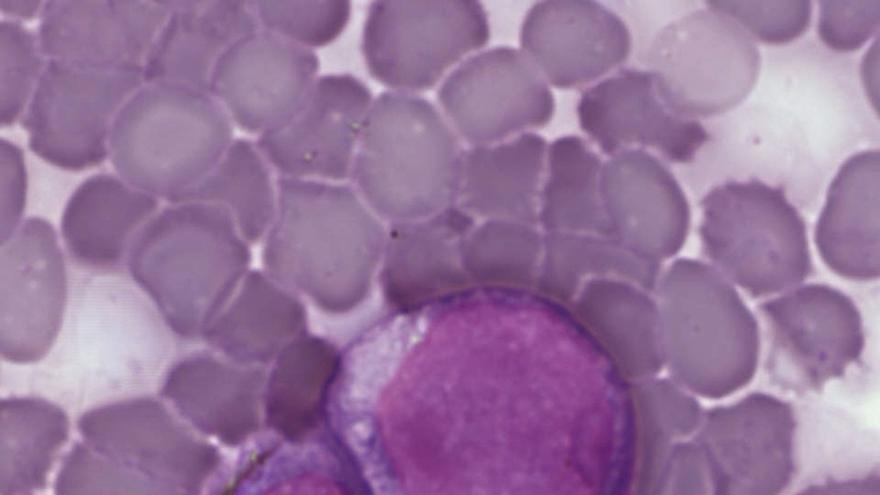 IBBTEC e IFCA participan en un estudio que demuestra que es inevitable acumular mutaciones de la leucemia con la edad