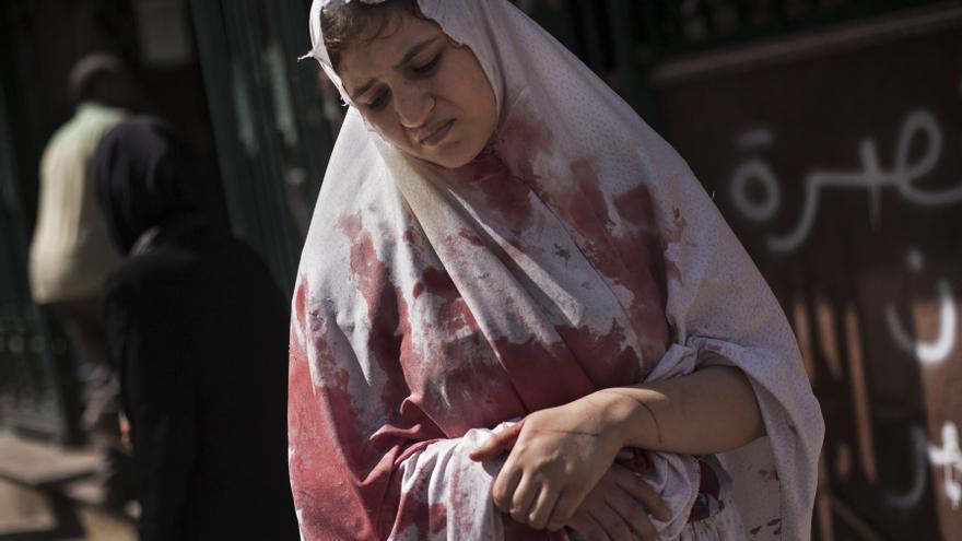 Una mujer herida todavía en shock abandona el hospital Dar El Shifa, en Aleppo, Siria. Esta es una de las fotografías galardonadas con el premio Pulitzer (20 de septiembre de 2012) / AP PHOTO. MANU BRABO