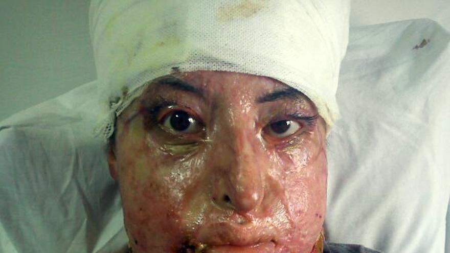 El rostro de Manar presenta graves quemaduras sufridas en la guerra de Siria./Fotografía cedida por su familia.