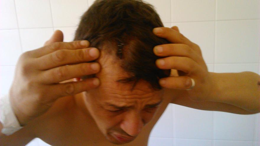 Una de las heridas de Zohuir, que presentó una denuncia por haber sufrido supuestamente torturas en el CIE de Zapadores.