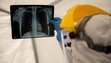Anosmia, fibrosis pulmonar, lesiones cardíacas: las secuelas de la COVID-19 son la cara menos visible de la pandemia