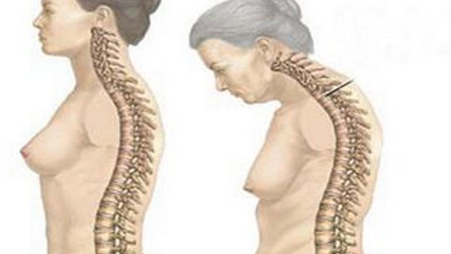 Dibujo de osteoporosis
