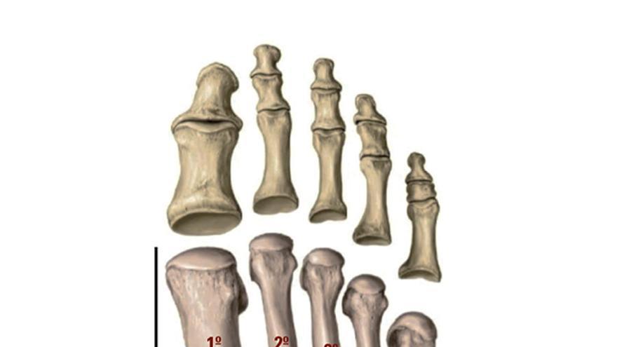 Lesión del tibial posterior, peritendinitis y tendinitis insercional