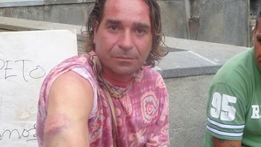 Uno de los acampados muestra las heridas producidas por la intervención policial. (CANARIAS AHORA)