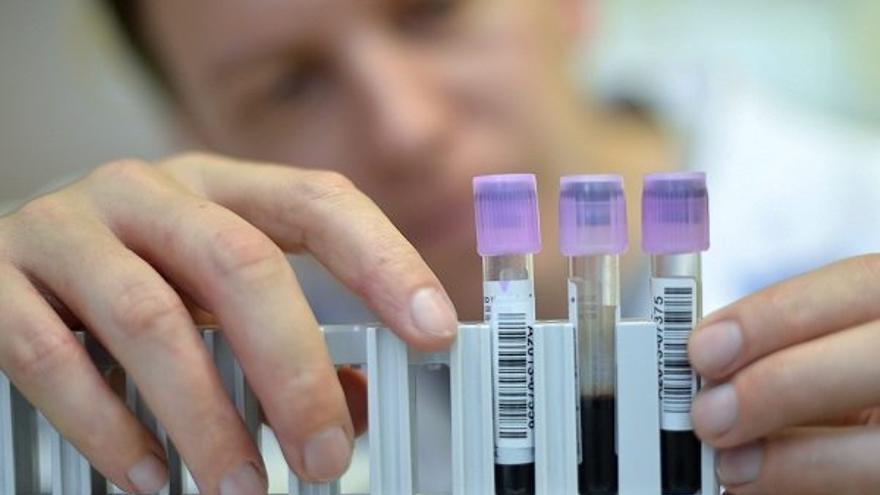 Personal sanitario manipula unas muestras de sangre en el laboratorio.   EFE-Christian Brun