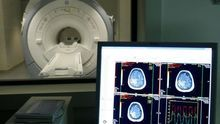 Un estudio señala las importantes desigualdades en las tasas de supervivencia del cáncer