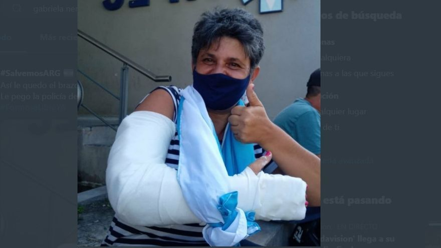 Concejala formoseña denuncia que le pegaron seis balazos de goma en la represión