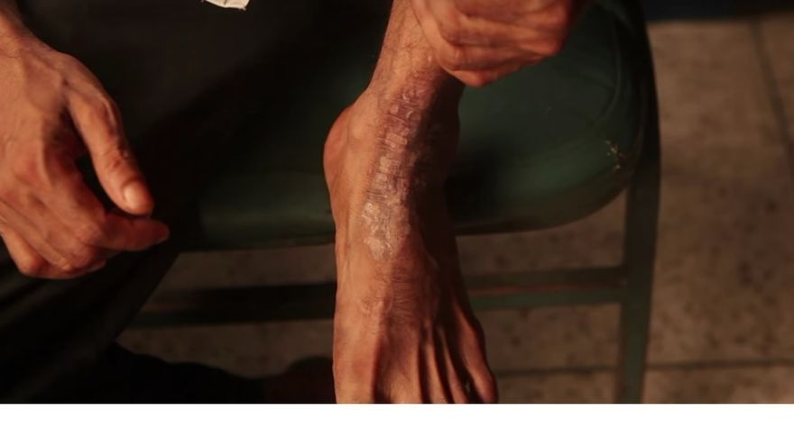Lesiones en la piel de uno de los trabajadores // Human Rights Watch