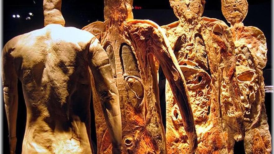 Bodies: la exposición de cuerpos plastinados que ha dividido Praga