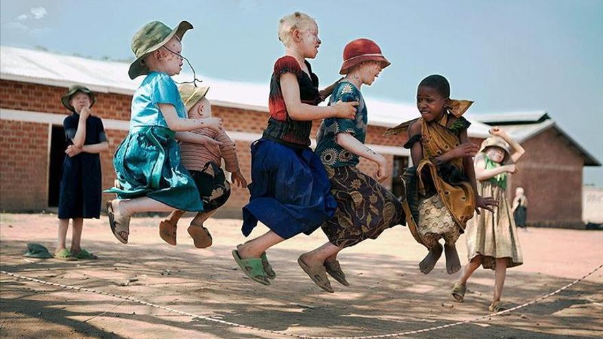Ana Palacios retrata el drama de los niños albinos en Tanzania