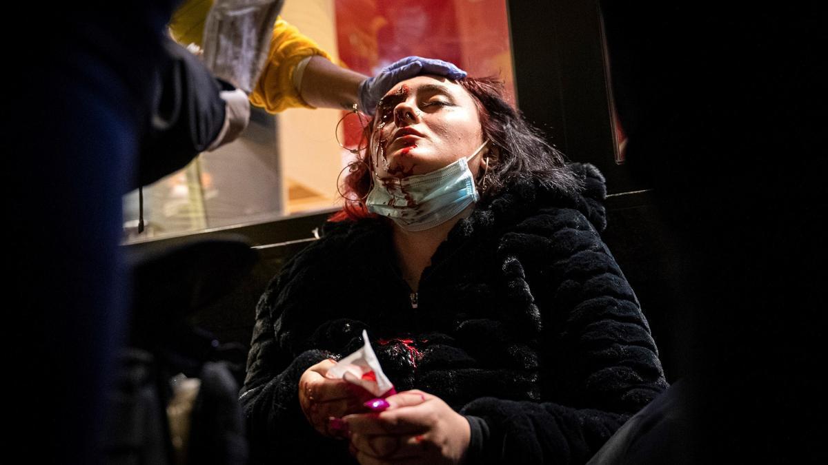 La joven herida en las protestas por Hasel por parte de un 'foam' de los Mossos