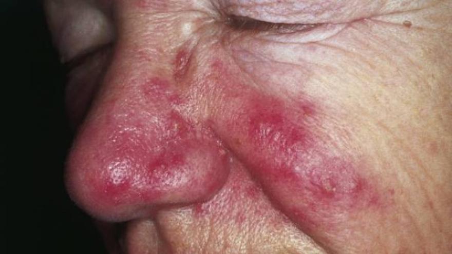 Rosácea: el falso acné de los adultos