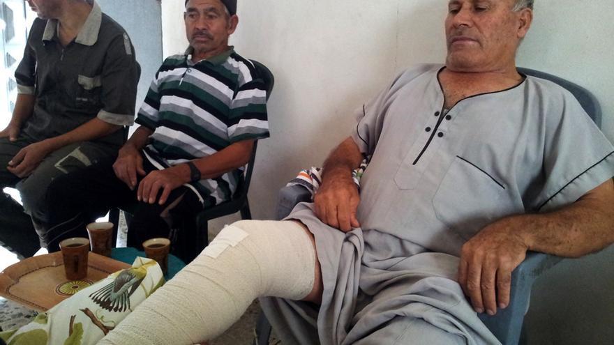 Yumá Zayed (70 años), pescador. Un francotirador israelí le disparó detrás de la rodilla. Foto: Isabel Pérez.