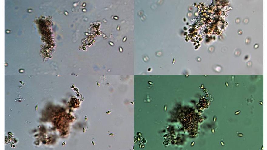 Figura 1: Diatomea marina Phaeodactylum tricornutum expuesta a nanoplásticos de poliestireno de 50 nm. En las imágenes tomadas con microscopio óptico se puede observar como los nanoplásticos son capaces de formar agregados con las microalgas provocando distintos efectos: inmovilización,  daños en su pared y membrana celular y daños en la eficiencia fotosintética debido al efecto pantalla.