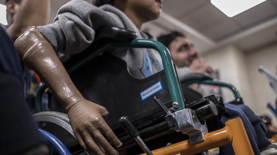 Hospital de cirugía reconstructiva de Médicos Sin Fronteras (MSF) en Amán.