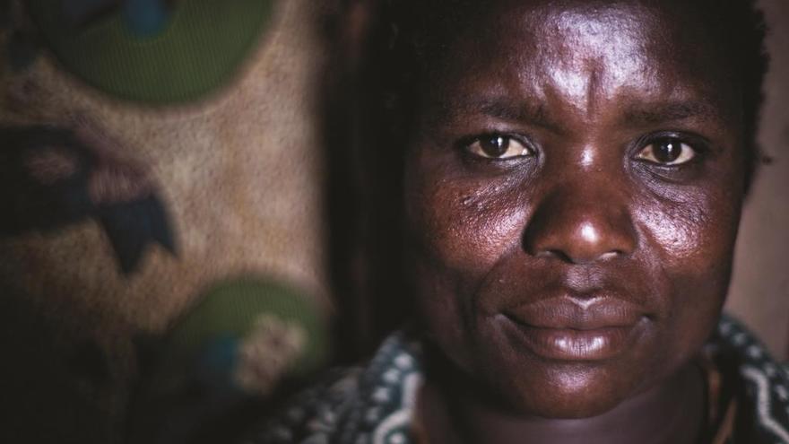 Edna vive en Thyolo y es VIH-positiva | © Sydelle Willow Smith | Thyolo, Malaui