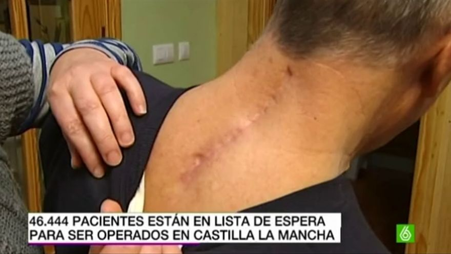 Imagen de la cicatriz de Antonio Ruiz tomada por La Sexta TV