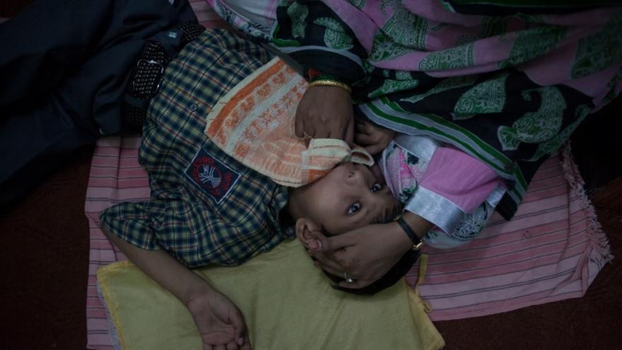 Una fisioterapeuta masajea un niño en el Chingari Trust, una escuela de educación especial que atiende los niños de Bhopal.  // FOTO: Bernat Parera