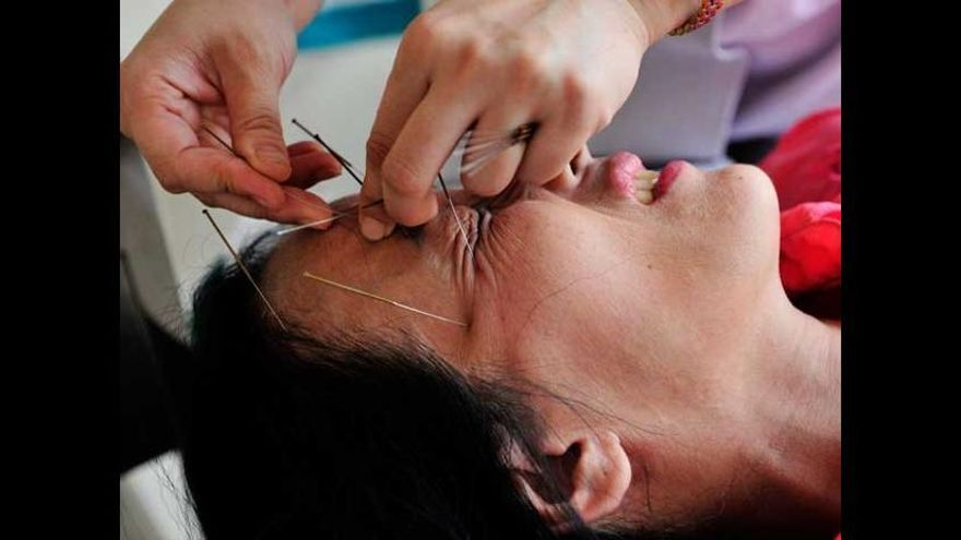 La acupuntura no ha demostrado de forma concluyente su eficacia