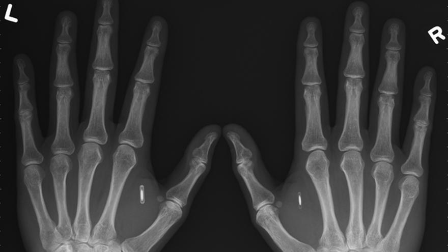 Radiografía de las manos de Amal Graafstra, que lleva un microchip en cada una