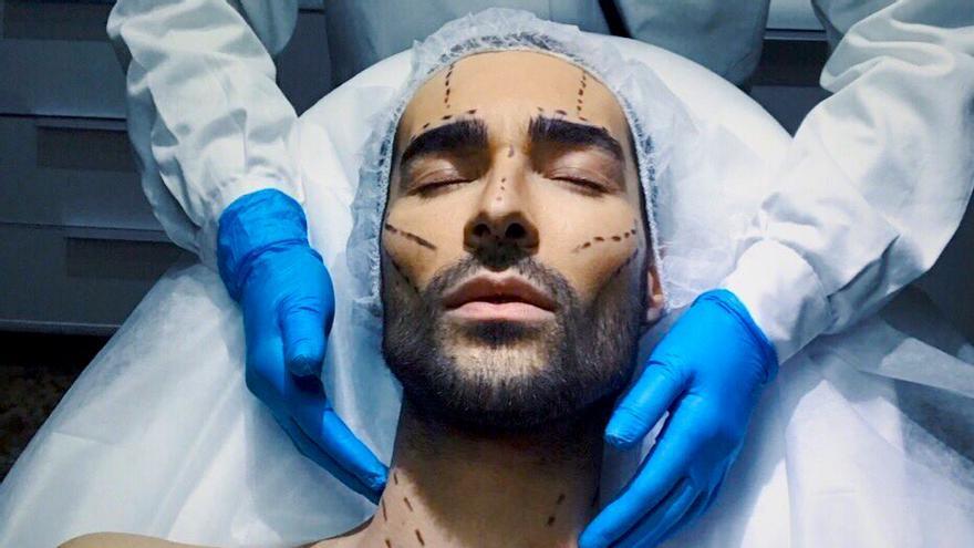 Miguel ('GH 17') se fotografía en plena operación estética y hace apología