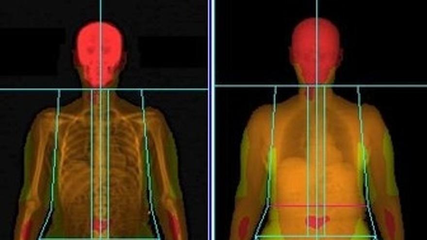 Escaner De La Composición Corporal Con La Masa Grasa De Paciente Con Obesidad
