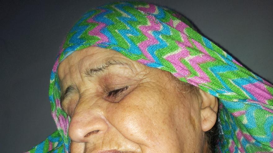 Se'afa Abu Sa'id, campesina palestina, muestra la herida provocada por un disparo israelí que le cruzó la mandíbula / Foto: Isabel Pérez