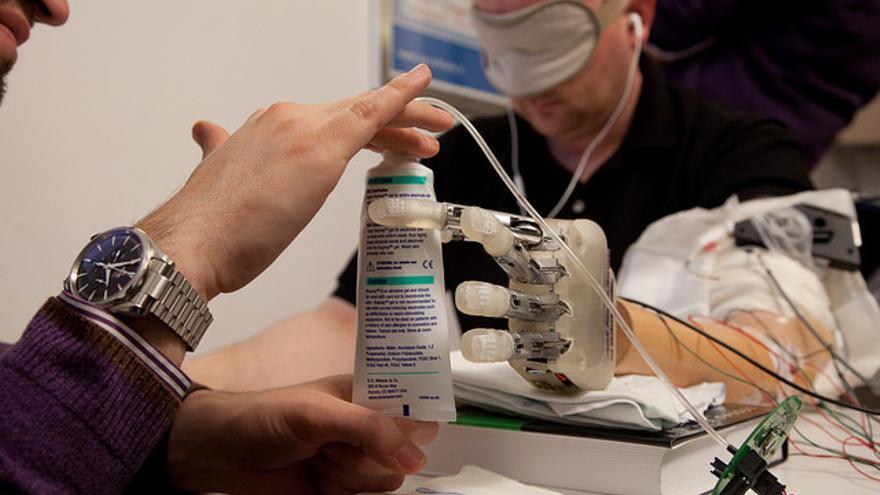 Varios sensores permiten a los dedos mecánicos transmitir información al cerebro