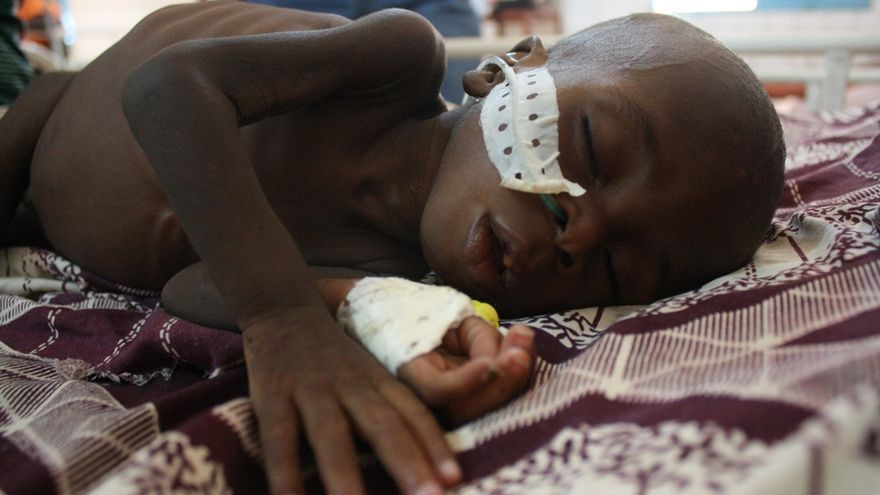 Abdoul Razak tiene quince meses pero aparenta seis. Sufre malnutrición severa pero su madre acudió al hospital por una diarrea. / María Rodríguez.
