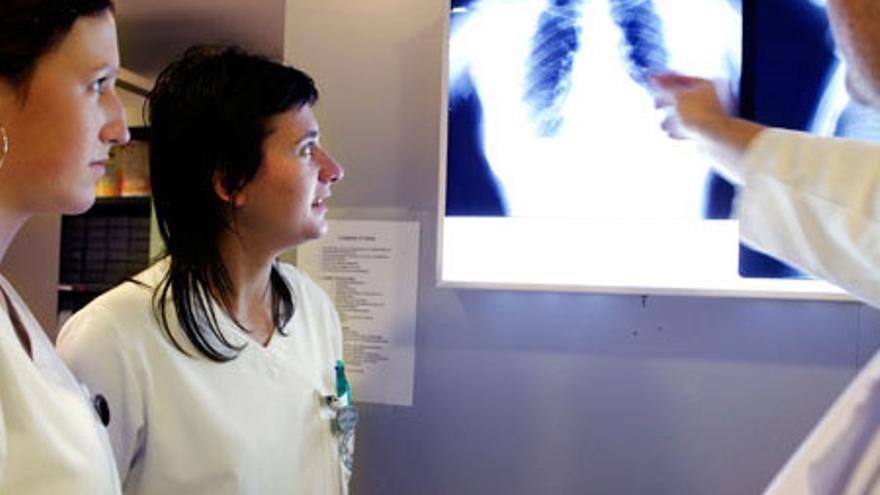 Enfermeras observan una radiografía. Foto: UPNA