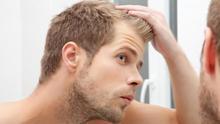 Evitar la caída del pelo: tres métodos que funcionan y siete cosas que no