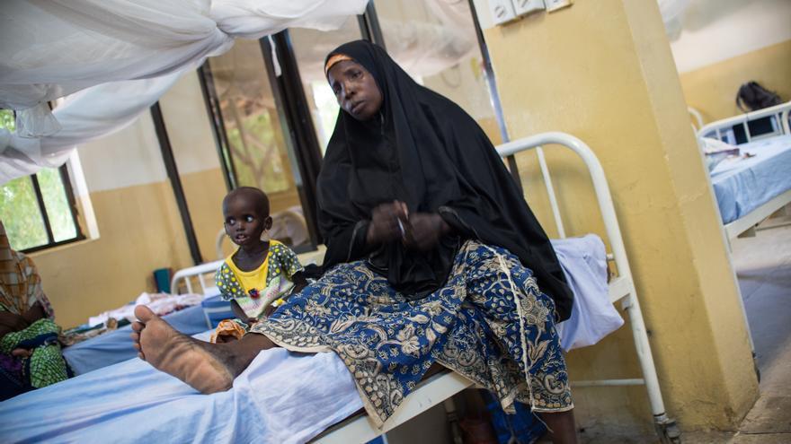 70 niños han tenido que ser derivados desde Beni Shiekh al hospital de Damaturu porque necesitan tratamiento hospitalario. Es el caso de esta niña que se recupera poco a poco de la desnutrición aguda severa. Su padre fue asesinado en un ataque de Boko Haram hace tres años y su madre se quedó a cargo de siete hijos. Sobrevive gracias a lo que mendiga su hijo mayor.  Fotografía: Ikram N'gadi.