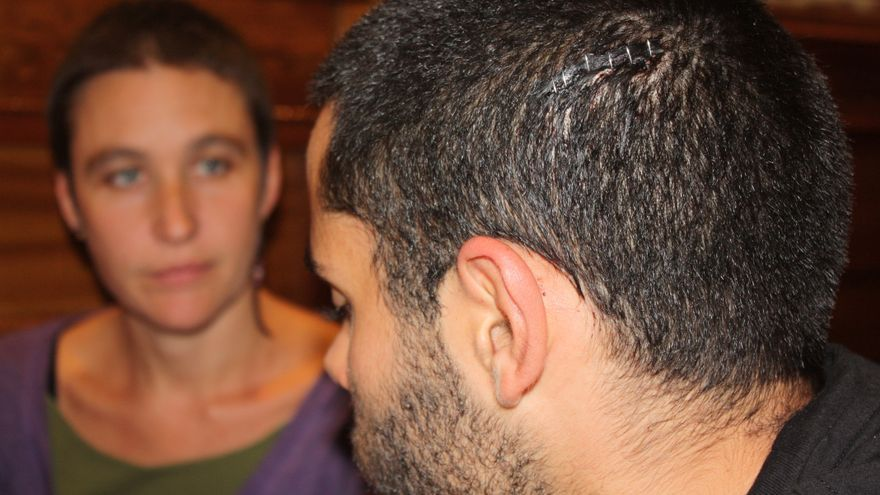 Gabriel recibió un golpe en la cabeza de la policía. En primer plano, la brecha con 6 grapas que le colocaron en el hospital. (Olga Rodríguez)