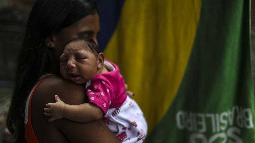 Lo niños con microcefalia no consiguen un desarrollo normal, además de otras patologías asociadas a ese problema.