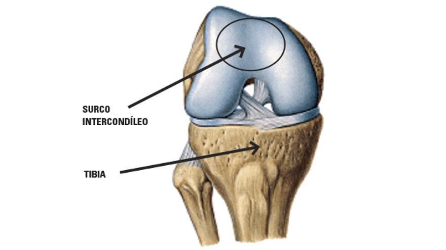 Condromalacia rotuliana o rodilla de corredor Parte I