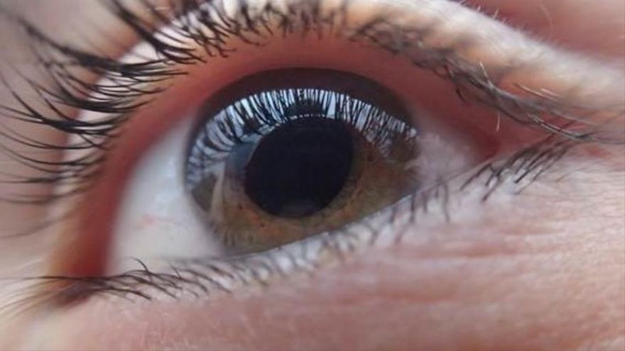 Implantan por primera vez la lente para cataratas patentada por el CSIC