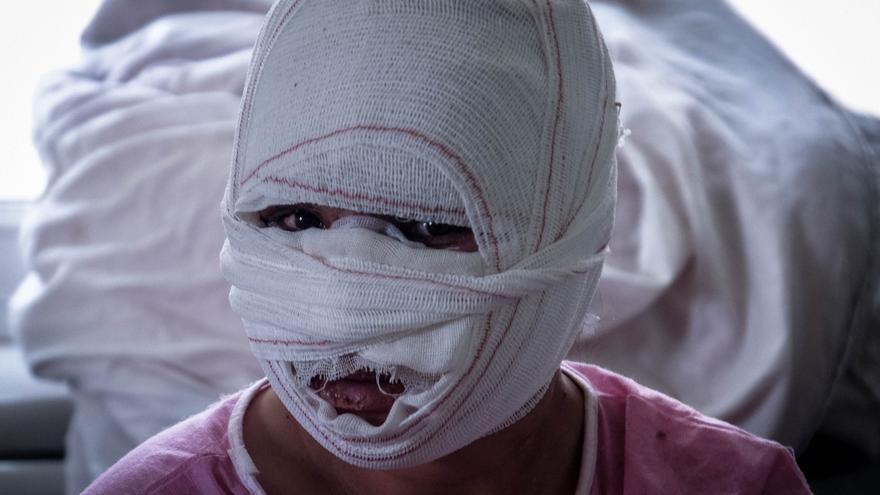 Dina tiene el cuerpo recubierto con gasas impregnadas en yodo en el hospital. Tiene 17 años y ha intentado sucidarse.