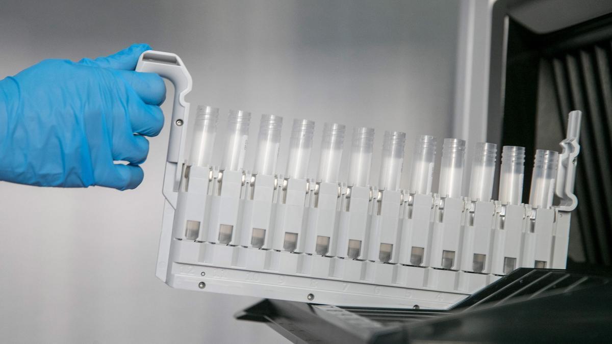 Vista de las probetas para los test PCR en el laboratorio de análisis de un hospital