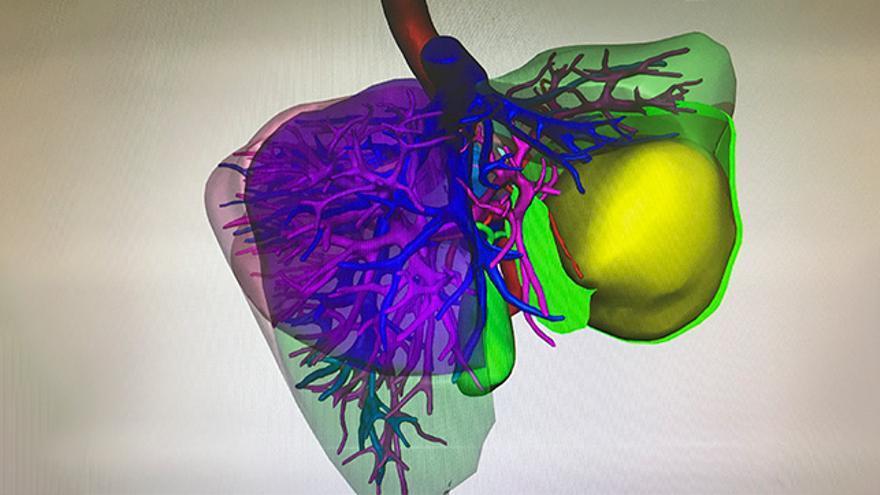 Los hígados virtuales permiten navegar dentro del órgano del paciente sin necesidad de intervenirlo.