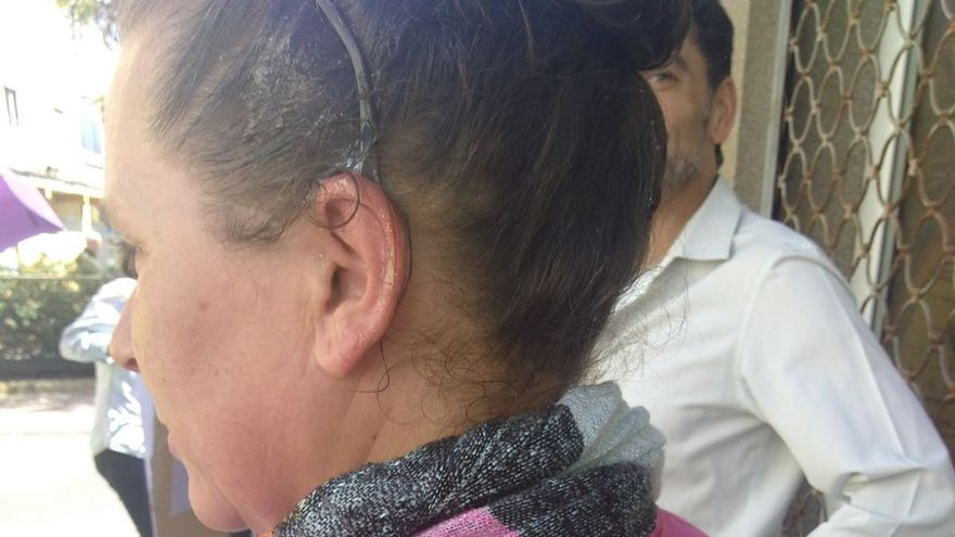 Una mujer agredida por el lanzamiento de huevos desde una vivienda durante una movilización en Telde.