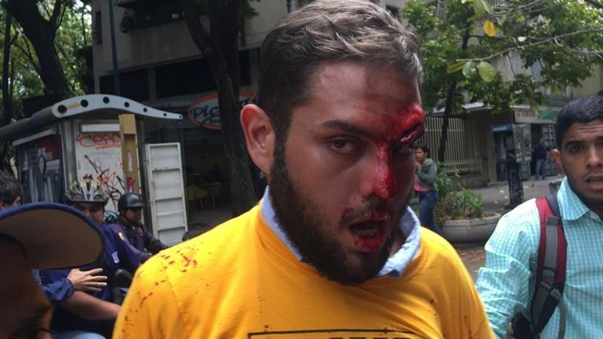Agreden a diputado opositor en protesta ante Defensoría venezolana