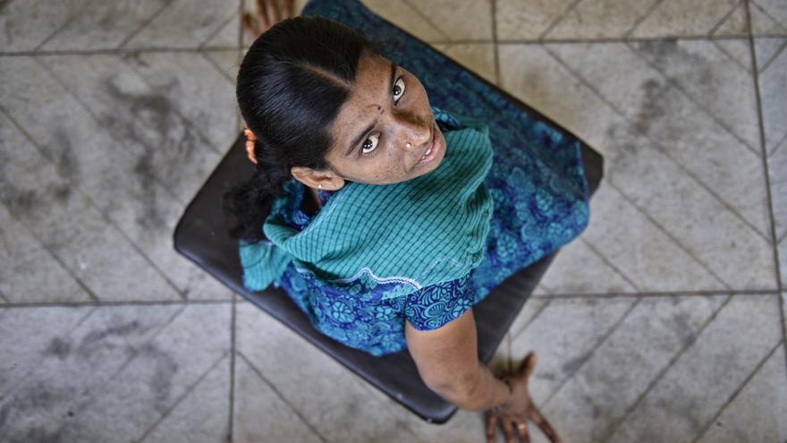 Laxmi Devi con el pequeño carrito que utiliza para desplazarse. La polio la dejó incapaz de moverse. / Zigor Aldama