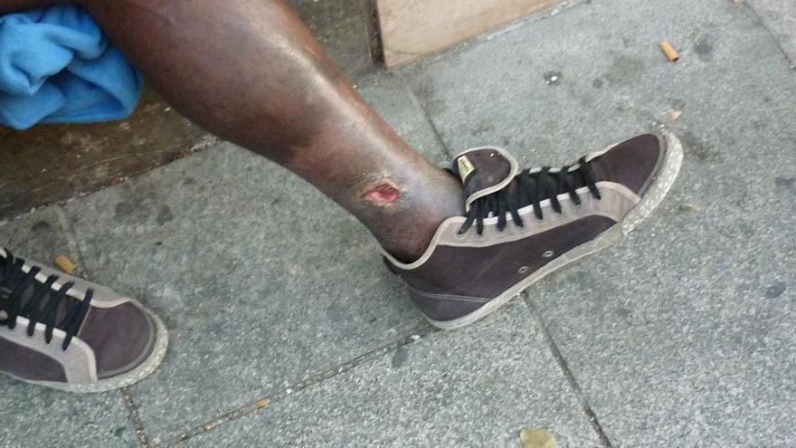 La pierna del inmigrante portugués, con la herida