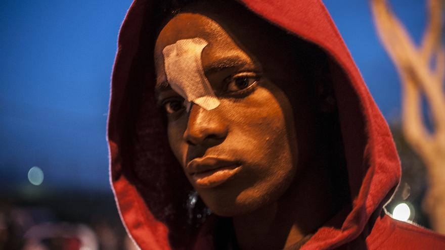 Daoudá, un joven burkinés de 22 años cuyo brazo quedó desgarrado tras encharse con las cuchillas de la valla de Melilla./Jesús Blasco de Avellaneda