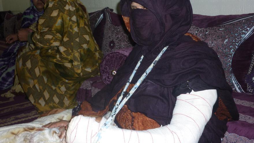 Mujer saharaui víctima de violencia tras el desmantelamiento del campamento de protesta saharaui de Gdeim-Izik por fuerzas marroquíes en noviembre de 2010. Foto de Amnistía Internacional