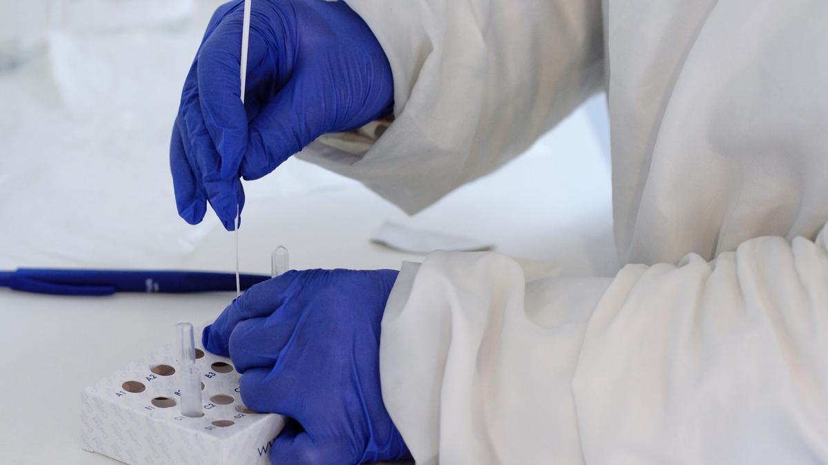 Realización de test rápido de PCR