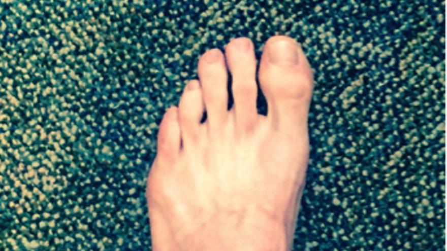 El pie de Brent Underwood, protagonista de su libro