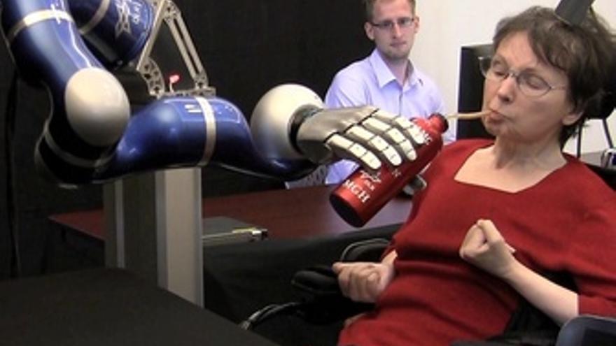 Ensayo Clínico- Brazo Robotico Movido Con La Mente