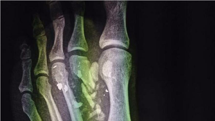 Radiografía del cabo que se disparó accidentalmente el pie en La Isleta.