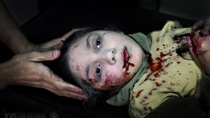 Dania Kilsi, 11 años, es tratada por heridas de metralla en el hospital de Dar-al Shifa. Ella y sus dos hermanos menores, Zaid, de 2 años y Fátima de 6 años, estaban jugando fuera de su casa cuando se una bomba le hirió./ / Niclas Hammarström